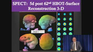 Harch -  HBOT in chronic TBI