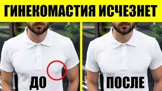 видео Лечение гинекомастии у мужчин