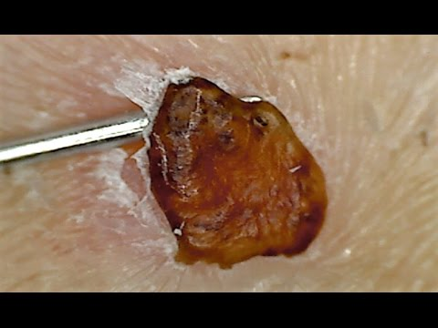 Slow Motion Magnified Scab Picking