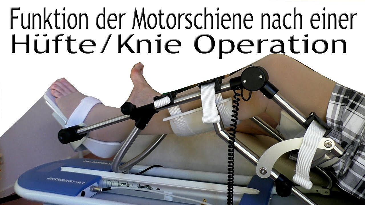 funktion der artromot k1 motorschiene nach einer h fte knie operation youtube. Black Bedroom Furniture Sets. Home Design Ideas