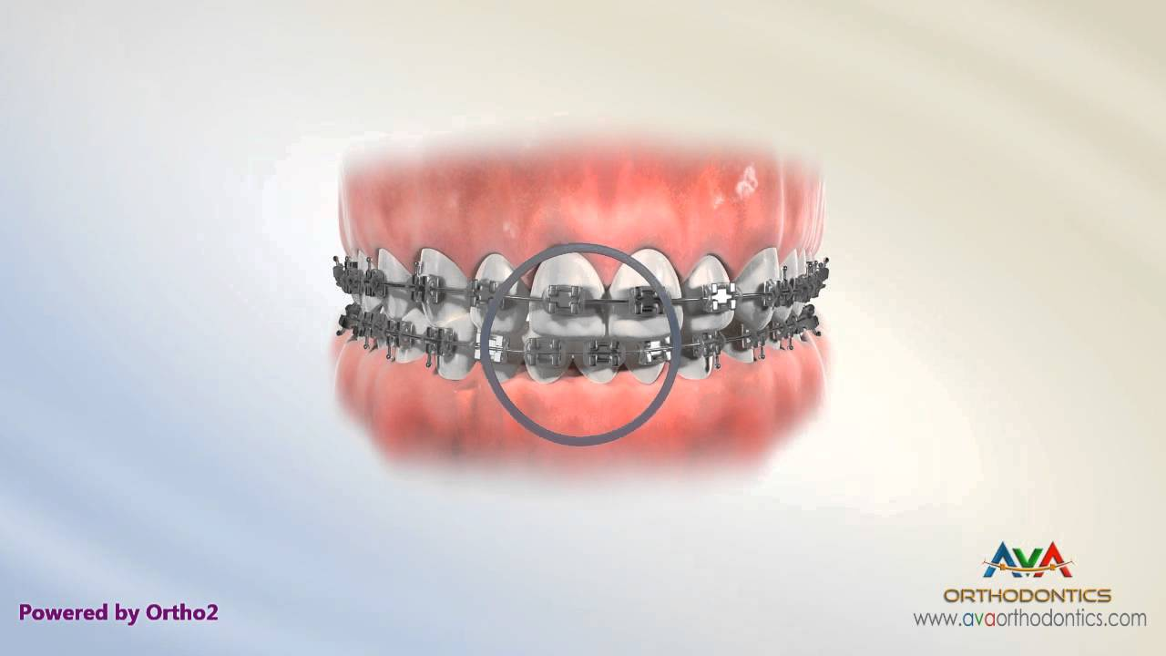 Orthodontic Treatment For Dental Midline Rubber Bands Youtube