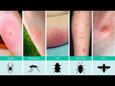 hqdefault - Spider Bite Resemble Pimple