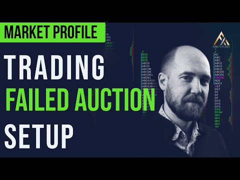 Market Profile Trading: How To Trade The Failed Auction Setup | Axia Futures
