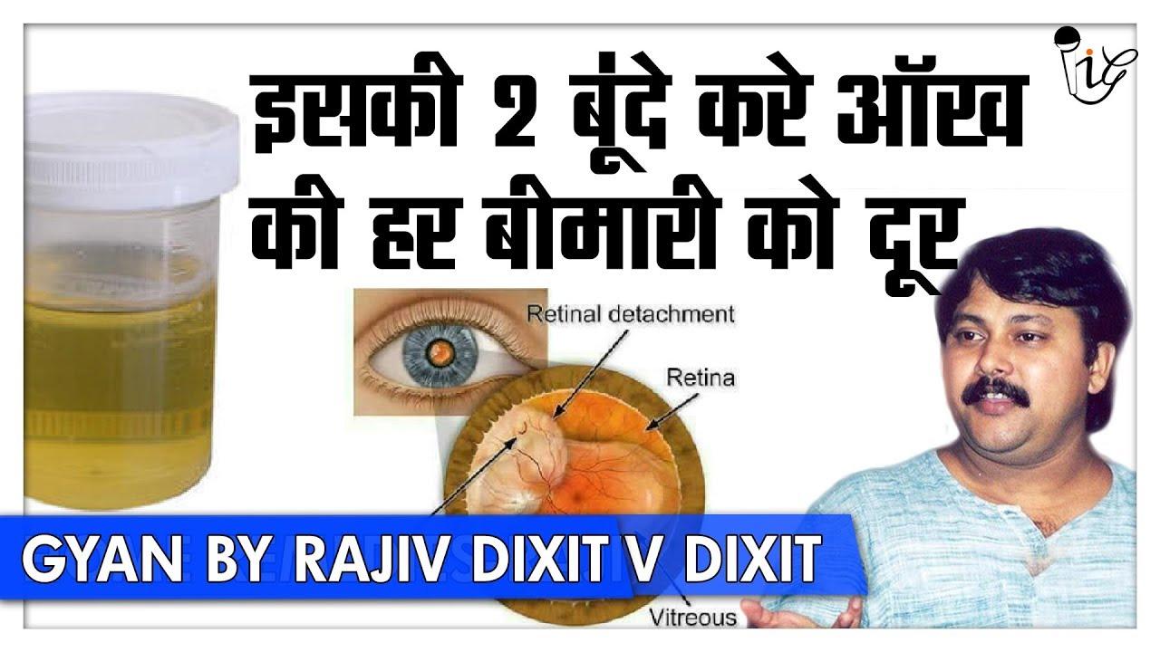 Rajiv Dixit - आंख में डाले इसकी दो बुँदे, Retinal Detachment जैसी बीमारी को  करें दूर | Must Watch