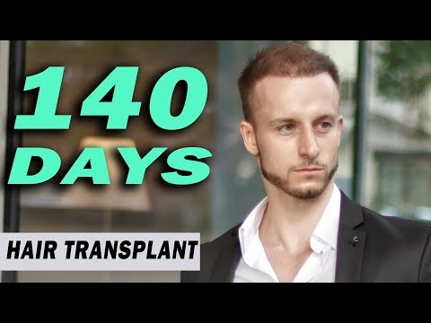 FUE Hair Transplant 140 Days (post op) Istanbul, Turkey GROWTH STAGE