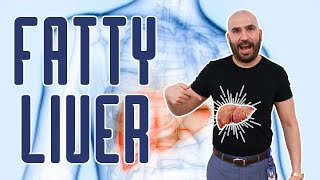 Fatty Liver | Gastric Sleeve Surgery | Questions and Answers