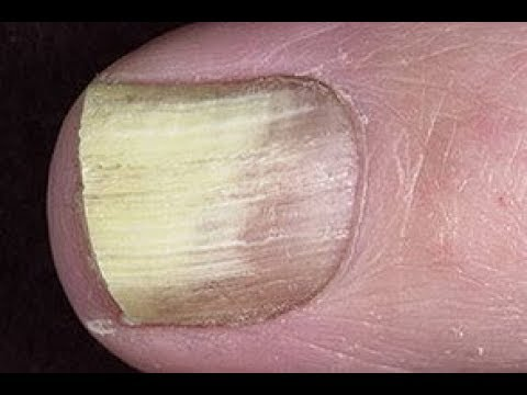 treat white toenail fungus