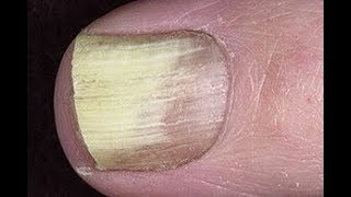 How to Treat White Toenail Fungus on a Budget. 3 Simple Ways.