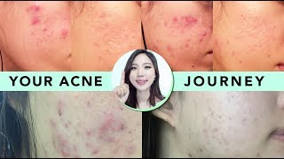 🌴How My Subscribers Cleared Up Acne • Skincare & Diet Tips to Get Rid of Acne