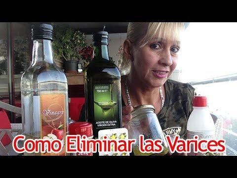 como quitar las varices con vinagre de manzana