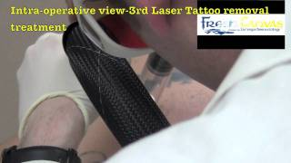 Larry's Continued Tattoo Removal Journey at Las Vegas Dermatology Thumbnail