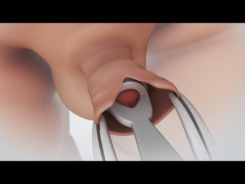 Patient Education Video: Circumcision
