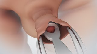Repeat youtube video Circumcision | Nucleus Health