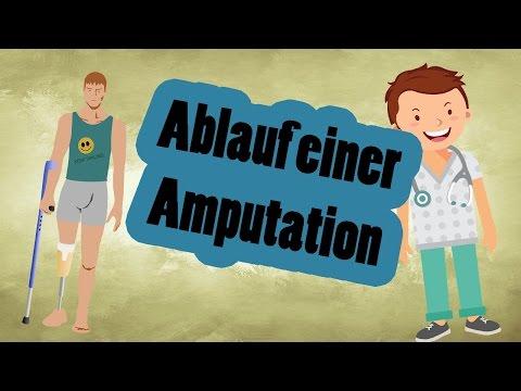 Was passiert bei einer Amputation?