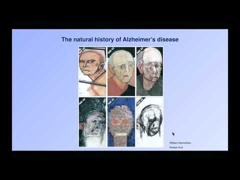 Ageing and Alzheimer's disease: the search for the cure