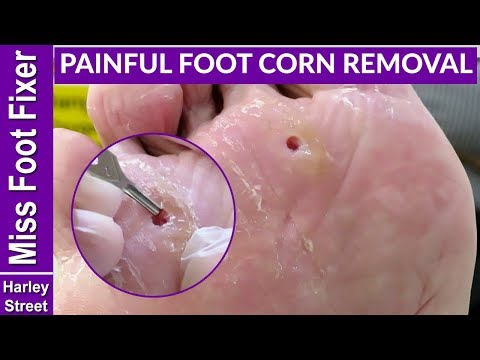 Satisfying deep corns removal with callus