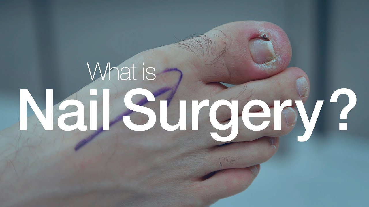 Nail Surgery All you need to know video from College Of Podiatry