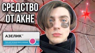 АЗЕЛИК Аптечное средство от прыщей Азелаиновая кислота