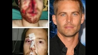 Paul Walker did not die !!! ( Paul Walker Ölmedi Hastane Röportajı )