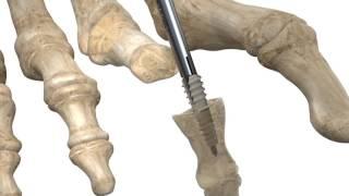 Stryker ToeTac | Implante para el dedo en martillo Fijación | Animación