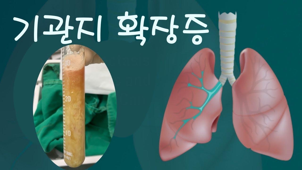 기관지 확장증