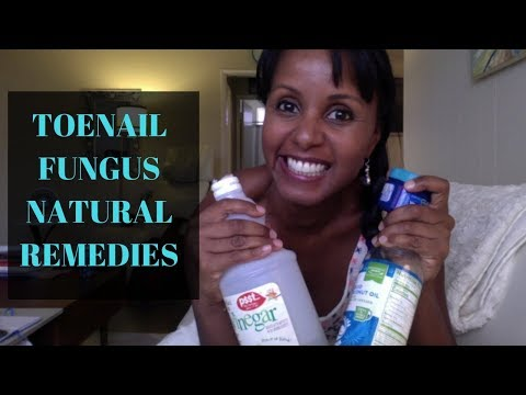 How to Get Rid of Toenail Fungus Fast and Naturally | Jovanka Ciares