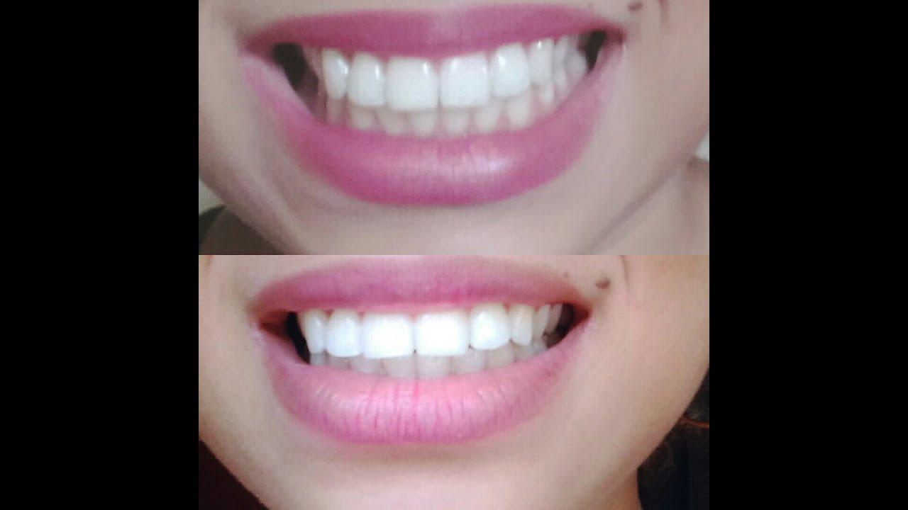 Clareamento Dental Caseiro Youtube