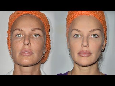 Подтяжка лица без операций. Результат после одной процедуры!