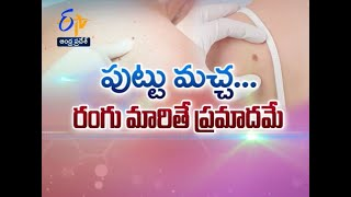 Changes In Moles... Are They Dangerous ? | Sukhibhava | 26th January 2021 | ETV Andhra Pradesh