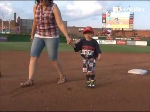 VIDEO: Anthony Durham, 4, who is one of only 5 people in the world with Stocco Dos Santos Syndrome,