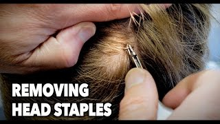 Removing HEAD STAPLES! (Ouch) | Dr. Paul