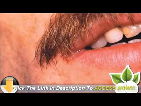 over the counter cracked lip treatment