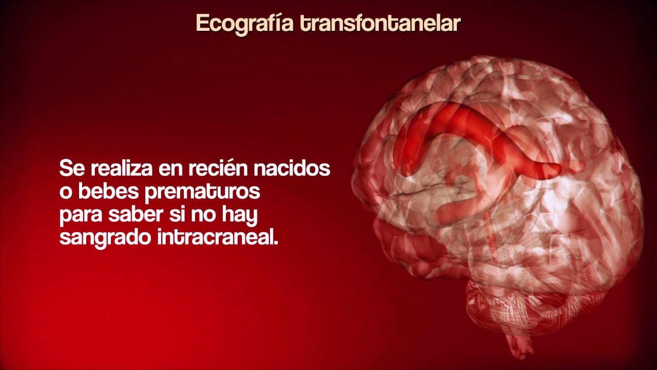 Ecografía Transfontanelar - YouTube