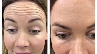 Anti Wrinkle Injections for Forehead thumbnail