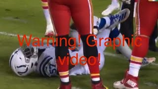 Kemoko Turay broken leg! Ouch!! Warning, graphic! ⚠️10/6/19 BANNED FROM YOUTUBE!!