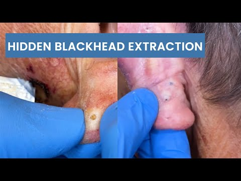Years-old Blackhead Behind The Ear Extracted | CONTOUR DERMATOLOGY