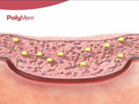 How PolyMem Wound Dressing Works?