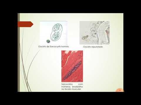 Sarcocystis Hominis