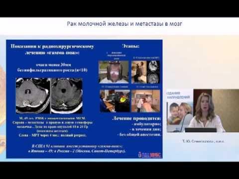 Рак молочной железы - причины, симптомы, диагностика и лечение
