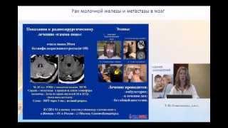 Рак молочной железы и метастазы в мозг(Рак молочной железы и метастазы в мозг Т.Ю. Семиглазова, к.м.н. Форум Экспертов по лечению рака молочной желе..., 2013-08-01T07:42:32.000Z)