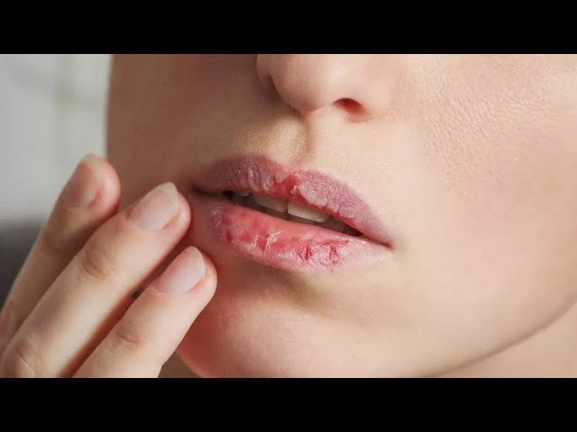ХИТРЫЙ ТРЮК, как быстро восстановить СУХИЕ, ОБВЕТРЕННЫЕ губы
