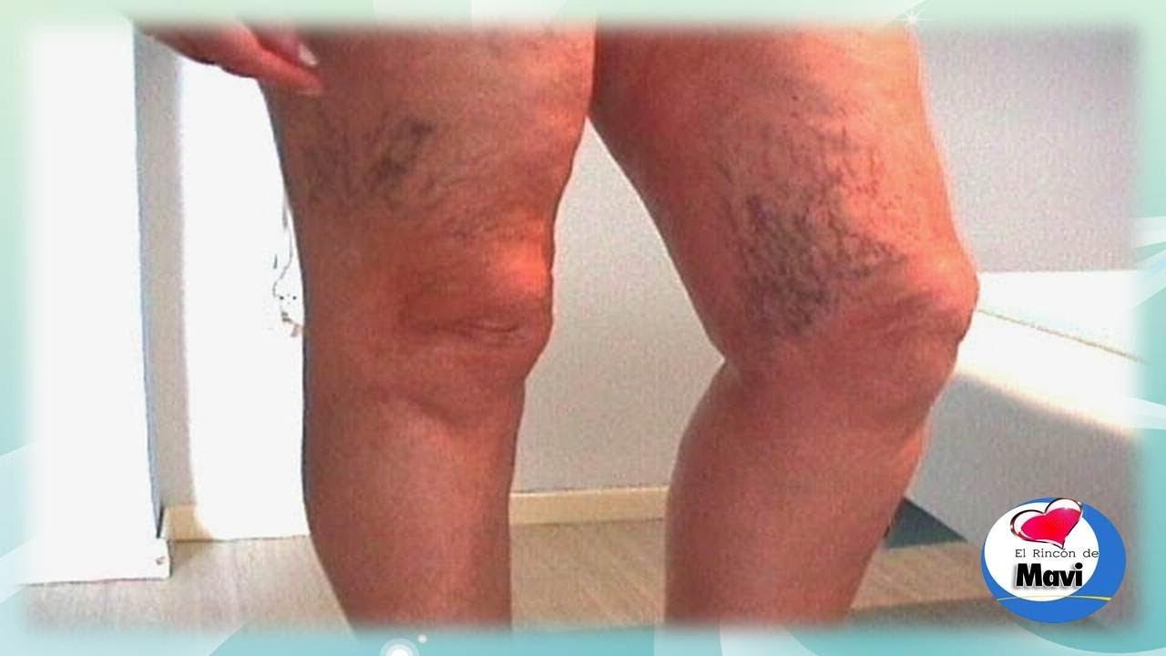 Inflamacin en una vena del pene: causas - ONsalus
