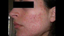 The Power of Accutane. My Isotretinoin Experience.