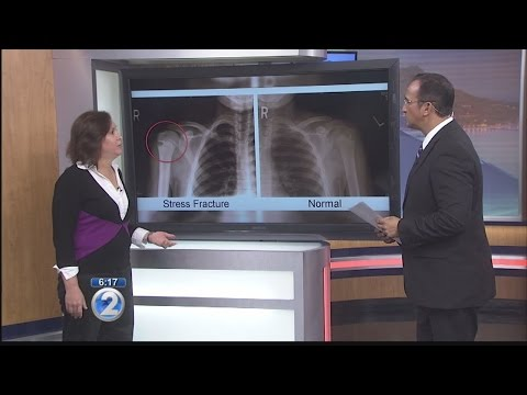 Ask a Specialist: Overuse Injuries in Children