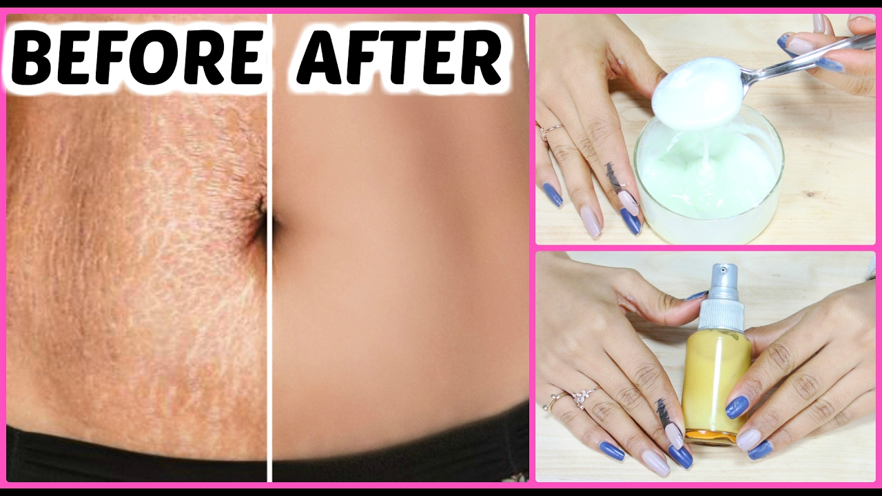 Diy Stretch Marks Removal Cream Guaranteed Results In 6 Weeks