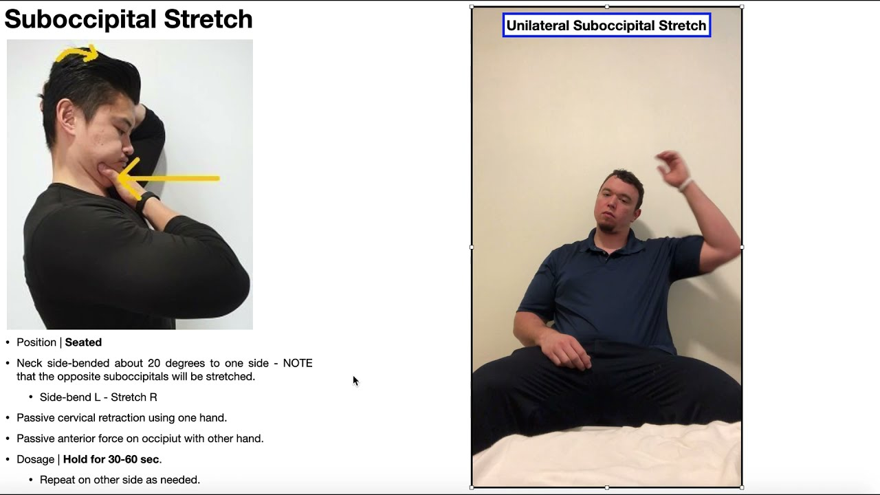 Suboccipital Stretch   Rationale & Technique [General & Unilateral]