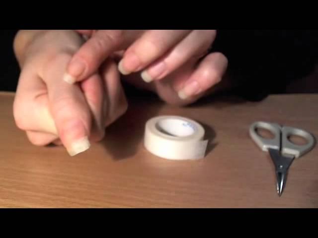 Симптомы и лечение ногтевого грибка