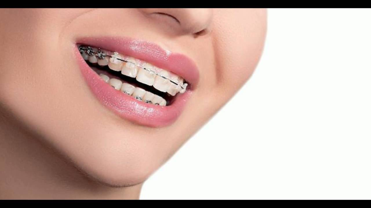 The Ceramic Braces Review  YouTube