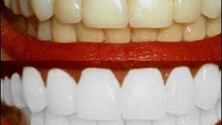 желтые зубы станут белоснежными, копеечный проверенный способ!