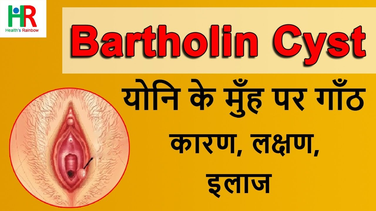 Natural remedies for bartholin's cyst